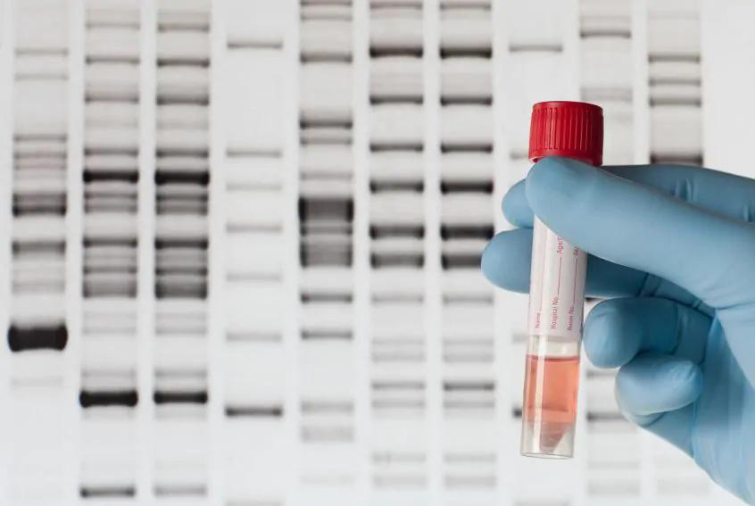 Có nhiều yếu tố ảnh hưởng đến chi phí xét nghiệm ADN